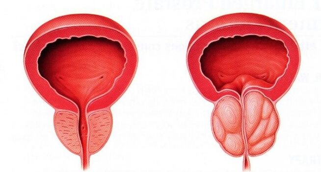 can prostatitis be cured